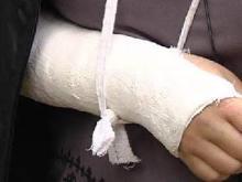 140 тысяч рублей получила челнинка за сломанную руку в маршрутке