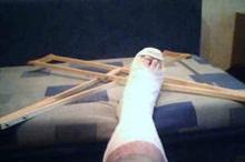 Житель Сидоровки сломал ногу в темноте